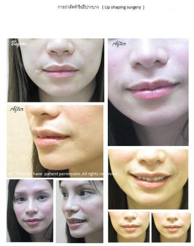 lip 2 - Lip Shaping Surgery ผ่าตัดตกแต่งริมฝีปาก