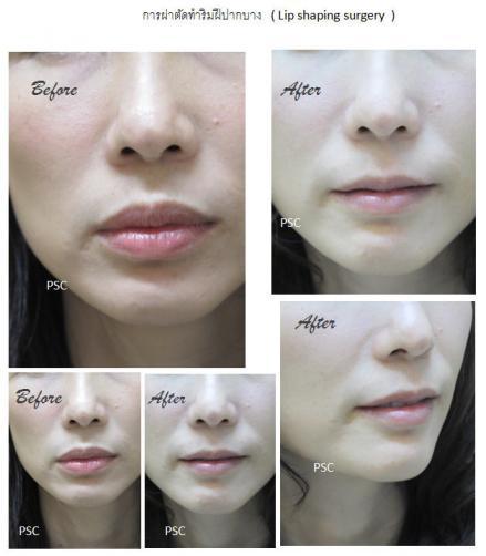 lip 3 - lip shaping surgery ผ่าตัดตกแต่งริมฝีปาก