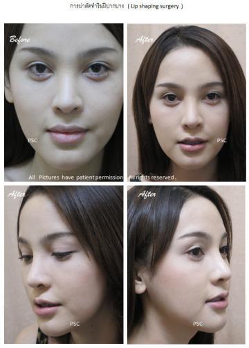 lip 4 - lip shaping surgery ผ่าตัดตกแต่งริมฝีปาก