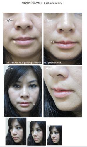 lip - Lip Shaping Surgery ผ่าตัดตกแต่งริมฝีปาก