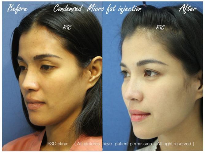 oblique - Facial Micro-Lipofilling Rejuvenation ( การฉีดไขมันที่หน้า เพื่อย้อนวัย)
