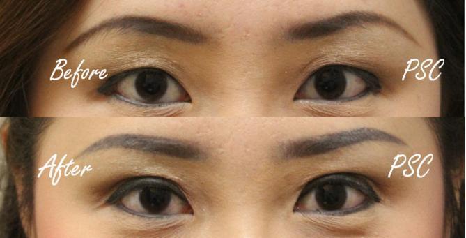 pic1 0 - Blepharoplasty ( ตกแต่งชั้นตา )