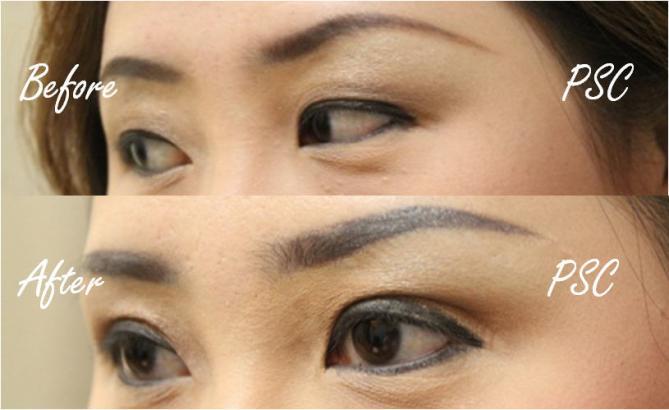 pic2 0 - Blepharoplasty ( ตกแต่งชั้นตา )