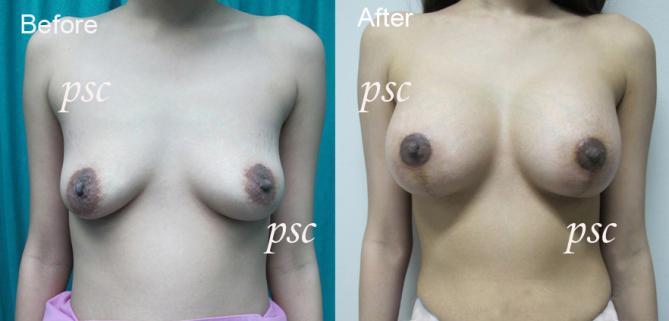 vertical mastopexy @ psc - Breast Lifting ( ผ่าตัดยกกระชับเต้านม )