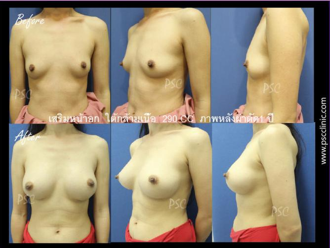 web1351 - รีวิว เสริมหน้าอก Breast augmentation ตอนที่ 2/2
