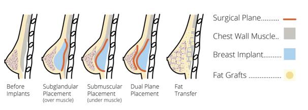003 - คลินิก เสริมหน้าอก ศัลยกรรมหน้าอก เสริมนม Breast Augmentation