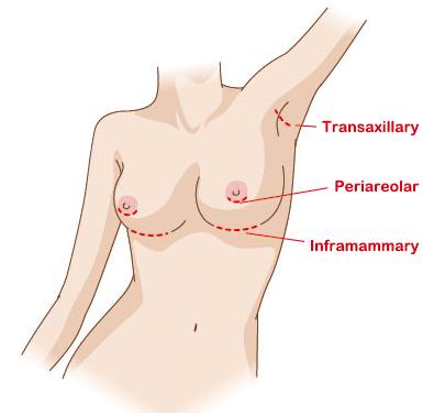 004 - คลินิก เสริมหน้าอก ศัลยกรรมหน้าอก เสริมนม Breast Augmentation
