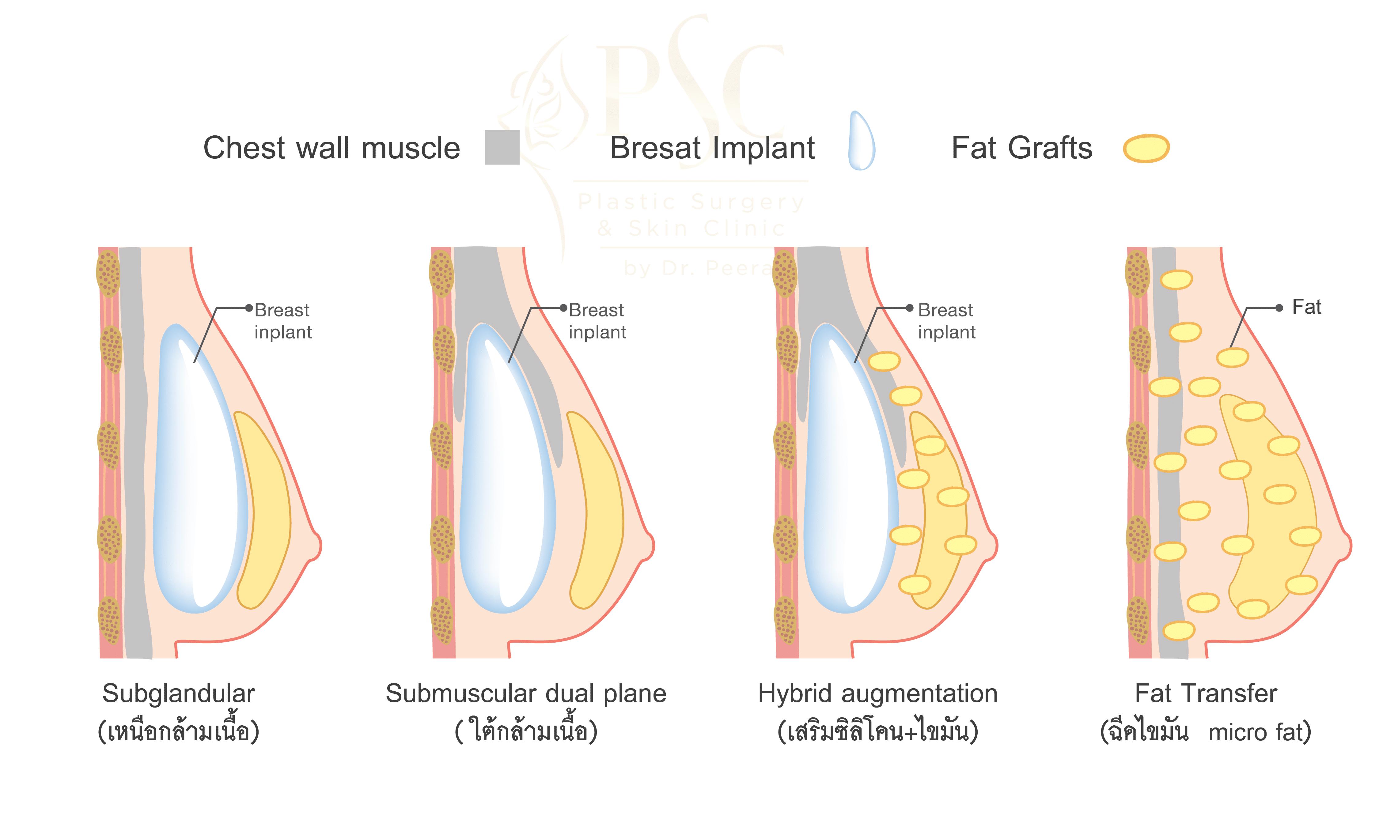 Sugery Breast 01 - คลินิกเสริมหน้าอก โดยหมอพีระ PSC Clinic ศัลยกรรมหน้าอก เสริมนม Breast Augmentation