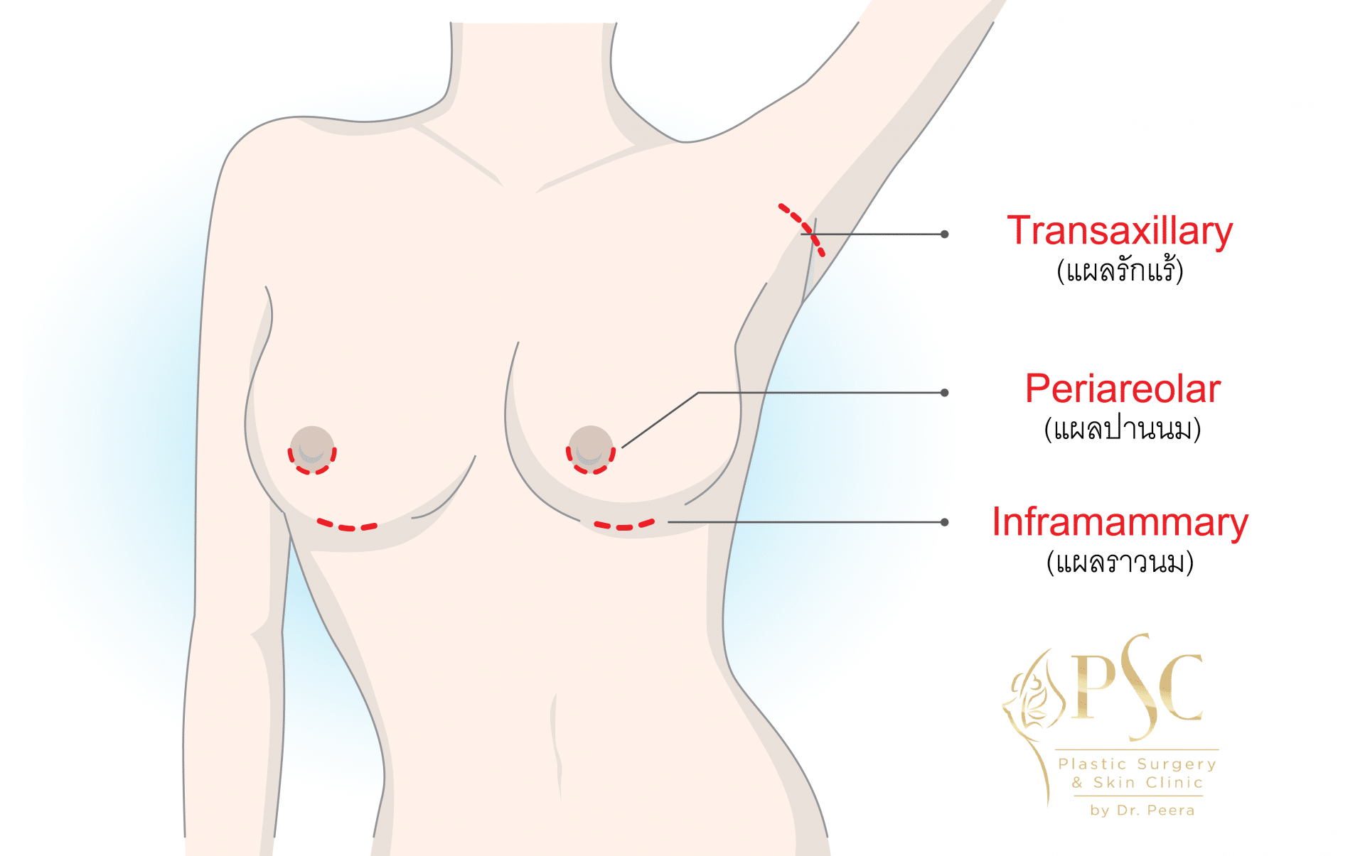 Sugery Breast 03 - คลินิกเสริมหน้าอก โดยหมอพีระ PSC Clinic ศัลยกรรมหน้าอก เสริมนม Breast Augmentation