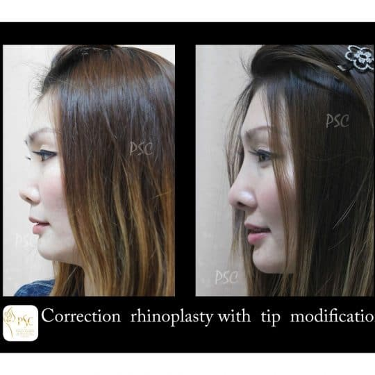 53 2166 lateral 540x540 - เสริมจมูกกับศูนย์ศัลยกรรมตกแต่งผิวหนังและเลเซอร์  PSC : Plastic Surgery Center   / Skin Center
