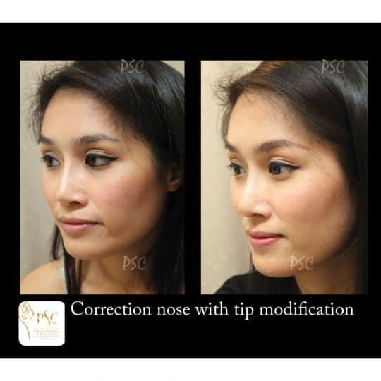 55 2827cr oblique 540x540 - เสริมจมูกกับศูนย์ศัลยกรรมตกแต่งผิวหนังและเลเซอร์  PSC : Plastic Surgery Center   / Skin Center