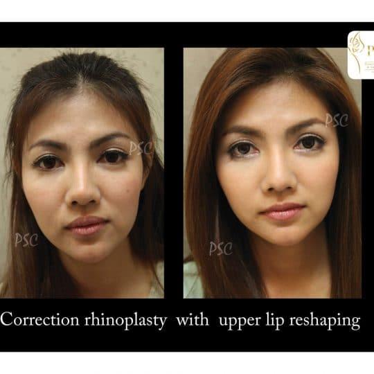 55 876 front 540x540 - เสริมจมูกกับศูนย์ศัลยกรรมตกแต่งผิวหนังและเลเซอร์  PSC : Plastic Surgery Center   / Skin Center