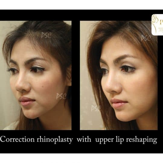 55 876 oblique 540x540 - เสริมจมูกกับศูนย์ศัลยกรรมตกแต่งผิวหนังและเลเซอร์  PSC : Plastic Surgery Center   / Skin Center