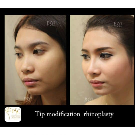56 1469 oblique 540x540 - เสริมจมูกกับศูนย์ศัลยกรรมตกแต่งผิวหนังและเลเซอร์  PSC : Plastic Surgery Center   / Skin Center
