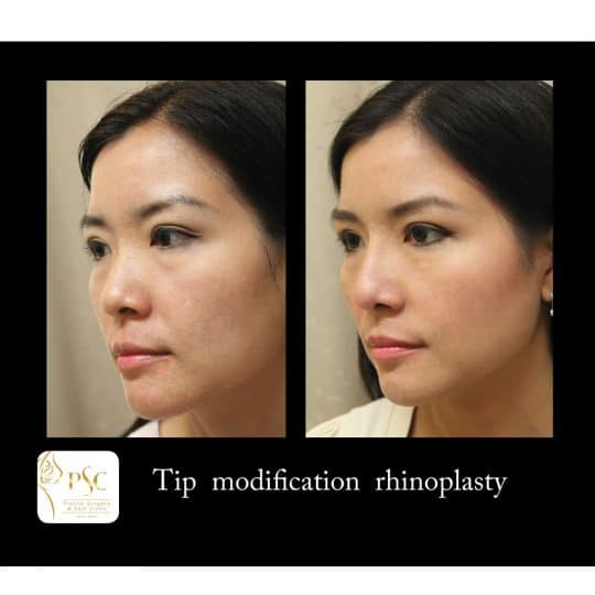 56 1866 oblique 540x540 - เสริมจมูกกับศูนย์ศัลยกรรมตกแต่งผิวหนังและเลเซอร์  PSC : Plastic Surgery Center   / Skin Center
