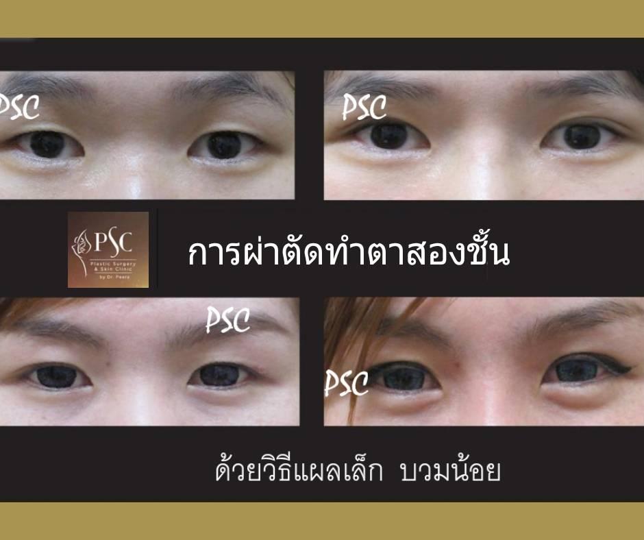 395014 - การผ่าตัดตาสองชั้น ด้วยวิธีแผลเล็ก บวมน้อย