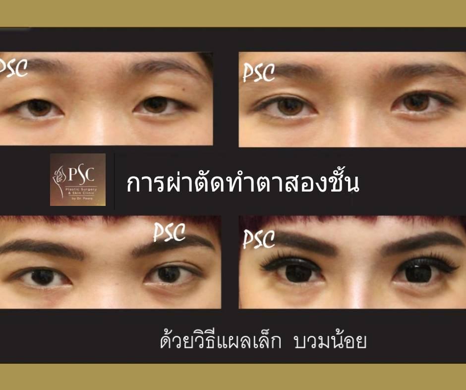 395015 - การผ่าตัดตาสองชั้น ด้วยวิธีแผลเล็ก บวมน้อย