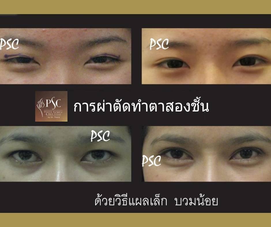 395016 - การผ่าตัดตาสองชั้น ด้วยวิธีแผลเล็ก บวมน้อย