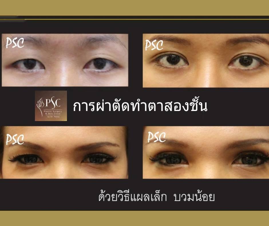 395017 - การผ่าตัดตาสองชั้น ด้วยวิธีแผลเล็ก บวมน้อย