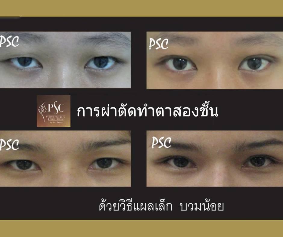 395018 - การผ่าตัดตาสองชั้น ด้วยวิธีแผลเล็ก บวมน้อย