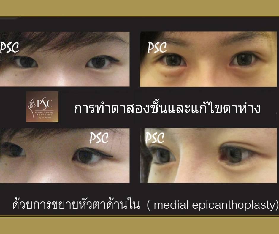 395019 - การผ่าตัดตาสองชั้น ด้วยวิธีแผลเล็ก บวมน้อย
