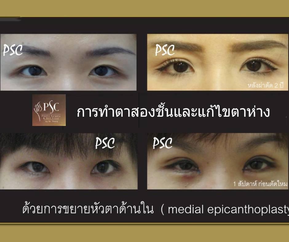 395020 - การผ่าตัดตาสองชั้น ด้วยวิธีแผลเล็ก บวมน้อย