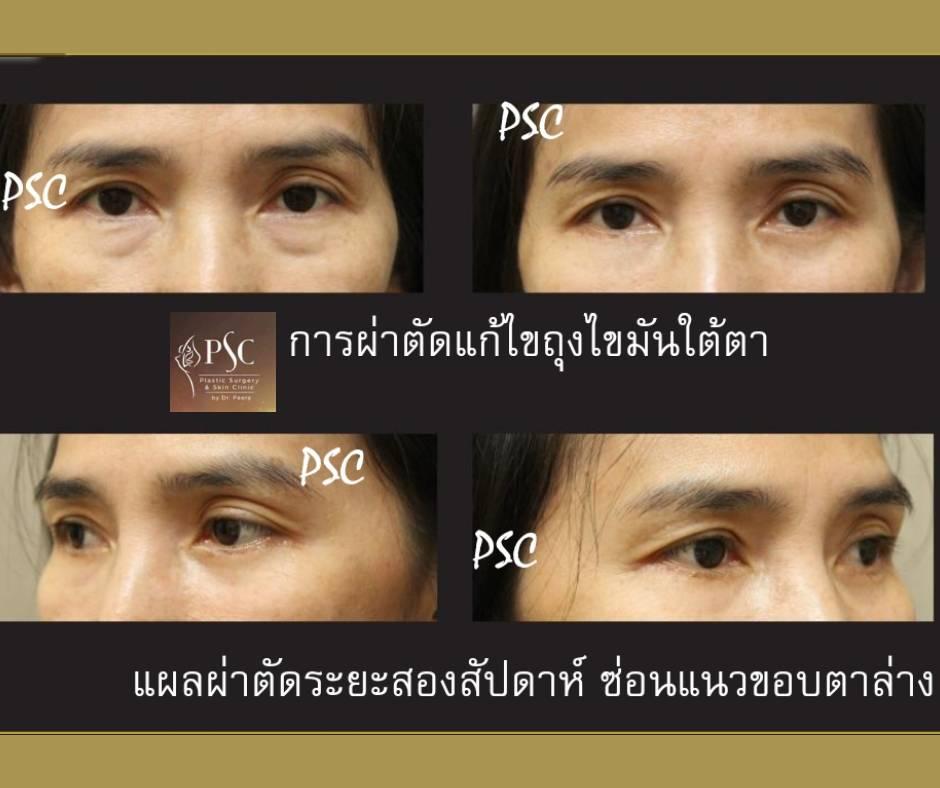 395021 - ผ่าตัดแก้ไขถุงไขมันใต้ตา