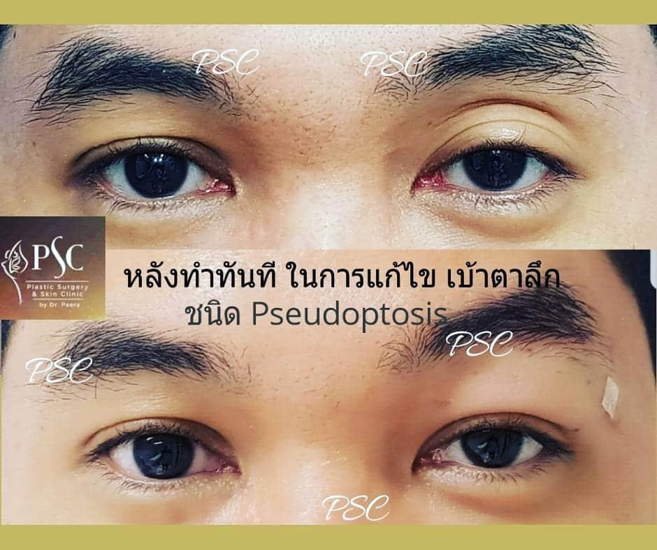 418326 - การผ่าตัดตาสองชั้น ด้วยวิธีแผลเล็ก บวมน้อย