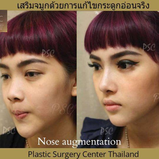402194 540x540 - Nose augmentation ( เสริมจมูก )