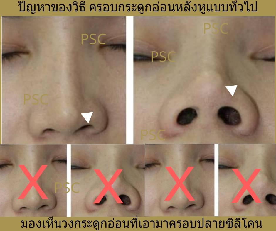 413882 - เสริมจมูกกับศูนย์ศัลยกรรมตกแต่งผิวหนังและเลเซอร์  PSC : Plastic Surgery Center   / Skin Center