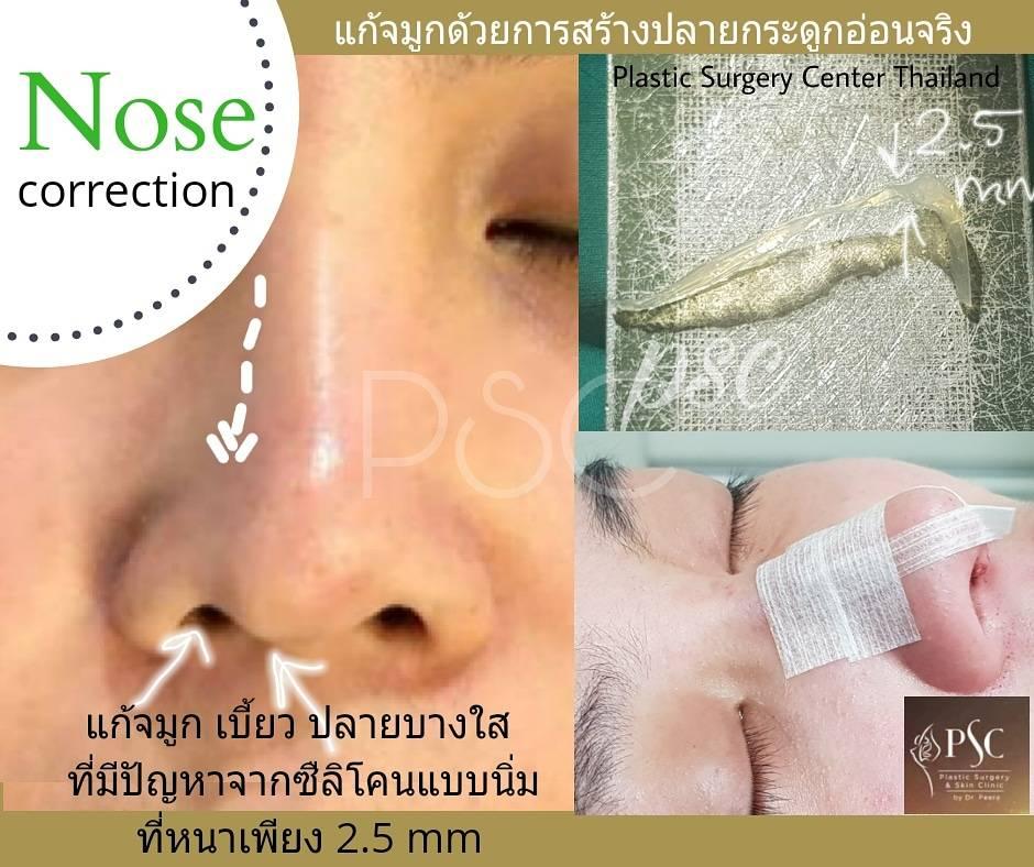 414250 - เสริมจมูกกับศูนย์ศัลยกรรมตกแต่งผิวหนังและเลเซอร์  PSC : Plastic Surgery Center   / Skin Center
