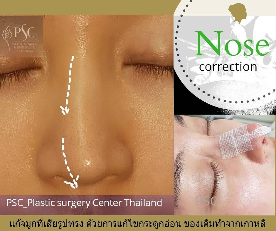 414254 - เสริมจมูกกับศูนย์ศัลยกรรมตกแต่งผิวหนังและเลเซอร์  PSC : Plastic Surgery Center   / Skin Center