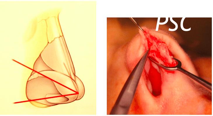 Screen Shot 2561 09 27 at 08.58.11 - เทคนิคเสริมจมูก ผ่าตัดเสริมจมูก โดยการสร้างปลายกระดูกอ่อนจริง 100 %