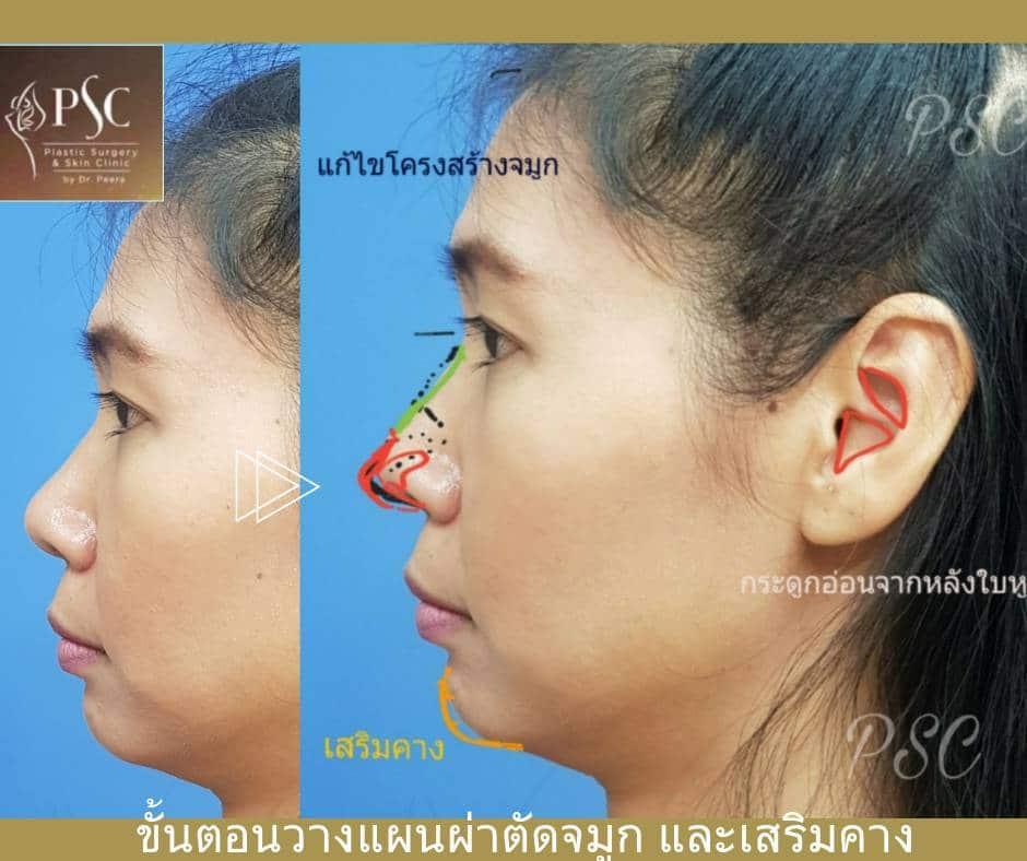 11 454450 - การเสริมจมูกด้วยเนื้อเยื่อตนเอง ( Autologous tissue nose augmentation )