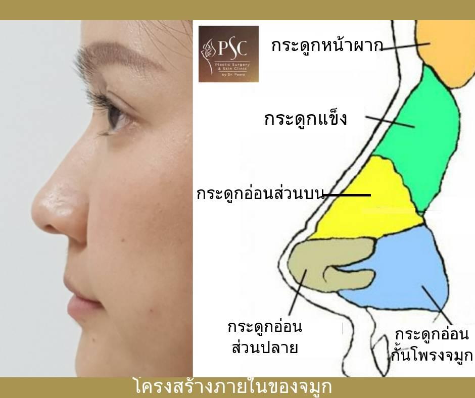 11 454976 - การเสริมจมูกด้วยเนื้อเยื่อตนเอง ( Autologous tissue nose augmentation )