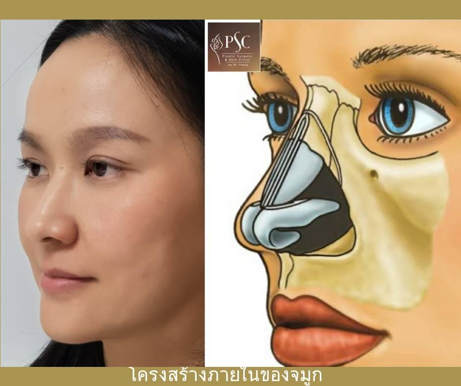 11 454977 - การเสริมจมูกด้วยเนื้อเยื่อตนเอง ( Autologous tissue nose augmentation )