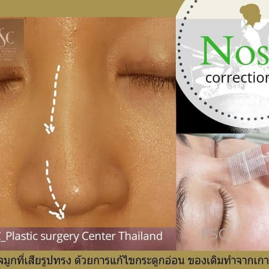 PSC.5 540x540 - เทคนิคการผ่าตัดเสริมจมูกพิเศษเฉพาะและการปฏิบัติตนเองก่อนและหลังเสริมจมูก PSC Clinic