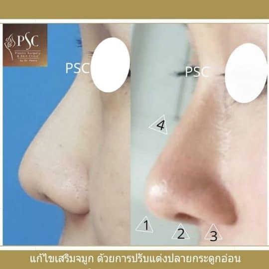 PSC.6 540x540 - เทคนิคการผ่าตัดเสริมจมูกพิเศษเฉพาะและการปฏิบัติตนเองก่อนและหลังเสริมจมูก PSC Clinic