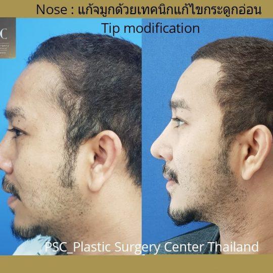PSC.8 540x540 - เทคนิคการผ่าตัดเสริมจมูกพิเศษเฉพาะและการปฏิบัติตนเองก่อนและหลังเสริมจมูก PSC Clinic