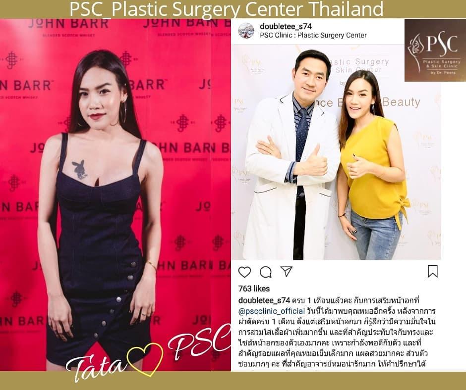 ขอขอบพระคุณคุณตาต้า จาก PSC Clinic