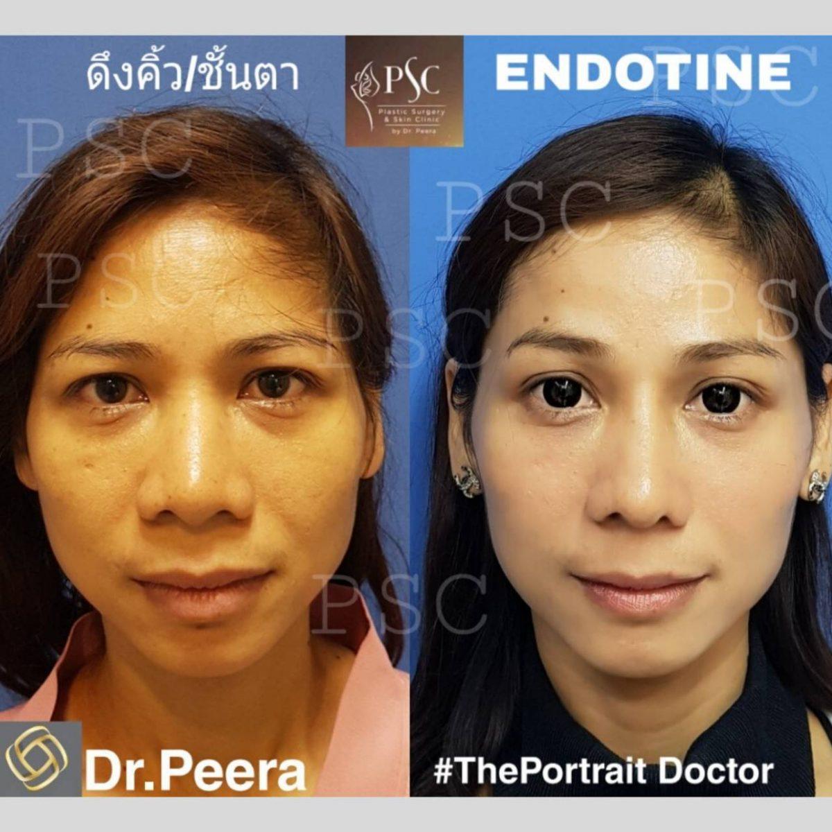 ดึงคิ้วและชั้นตา ด้วย Endotine +การส่องกล้อง -01