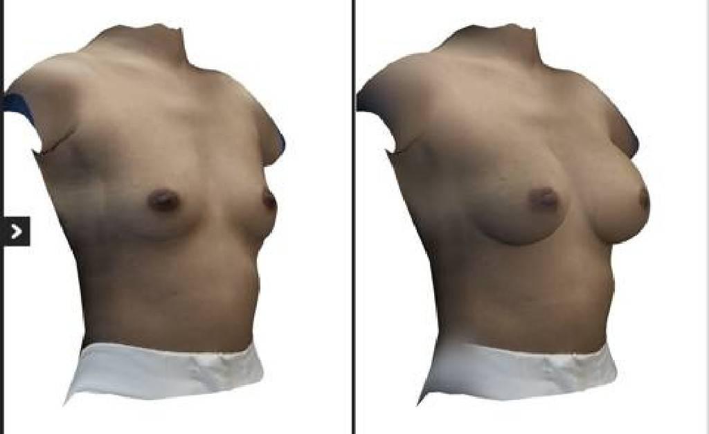 PSC 45 - รีวิวขั้นตอนทำนมและการผ่าตัด เสริมหน้าอก แต่ละประเภท