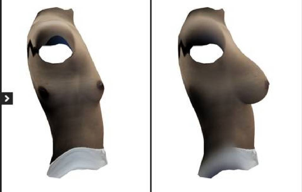 PSC 46 - รีวิวขั้นตอนทำนมและการผ่าตัด เสริมหน้าอก แต่ละประเภท
