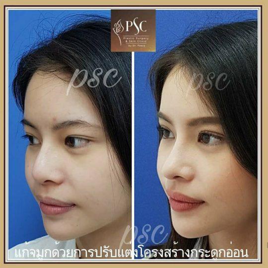 258426 540x540 - Nose augmentation ( เสริมจมูก )