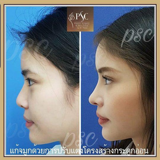 258427 540x540 - Nose augmentation ( เสริมจมูก )