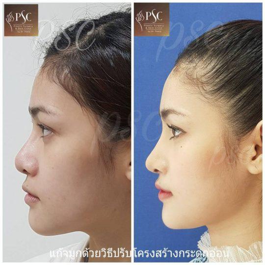 258430 540x540 - Nose augmentation ( เสริมจมูก )