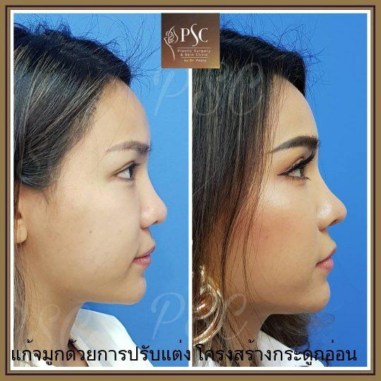 258431 540x540 - Nose augmentation ( เสริมจมูก )