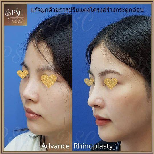 258440 540x540 - Nose augmentation ( เสริมจมูก )