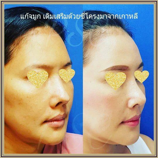 258441 540x540 - Nose augmentation ( เสริมจมูก )